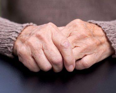 Cách quản lý bệnh Parkinson